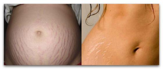 Как подтянуть кожу живота после родов. Обвисший живот после родов.